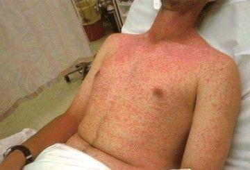 Алергія на шкірі: як виглядає реакція, причини захворювання, лікування