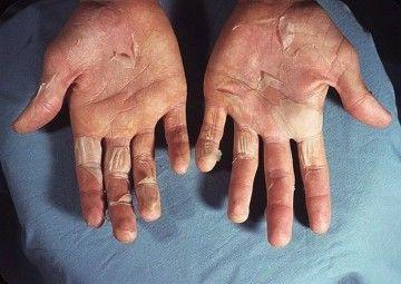 Що робити, якщо шкіра на руках лущиться?