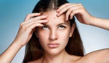 Лікування гормональних прищів
