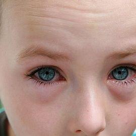 Набряк очі у дитини: які причини і як виправити ситуацію?