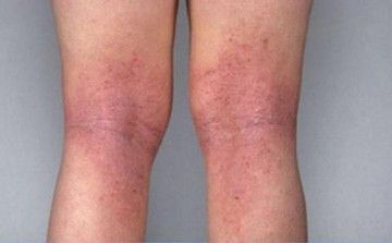 Пігментні плями на ногах: причини появи і методи видалення