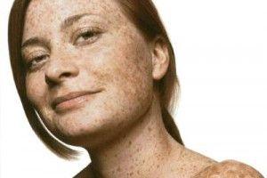 Пігментні плями при вагітності на обличчі: лікування та профілактика