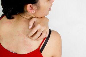 Чому свербить шкіра при вагітності?