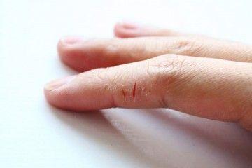 Сохне шкіра на долонях - в чому причина?