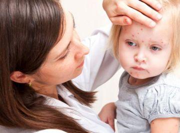 Висипання на шкірі у дітей: чому так буває і як від цього позбутися?